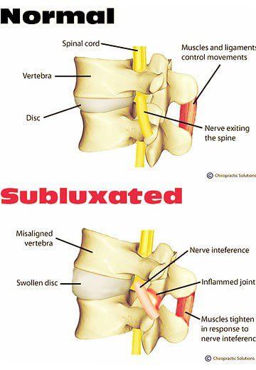 2 imagens de coluna, uma normal e outra com subluxação
